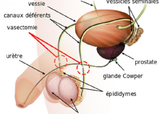 L'idée de vasectomie ne plait pas aux hommes...
