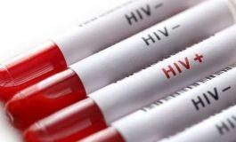 Un pas prometteur pour détruire les cellules infectées par le VIH