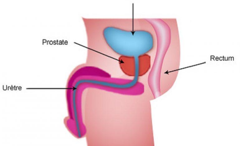 Cancer de la prostate: les symptômes à repérer, les facteurs pour l'éviter.