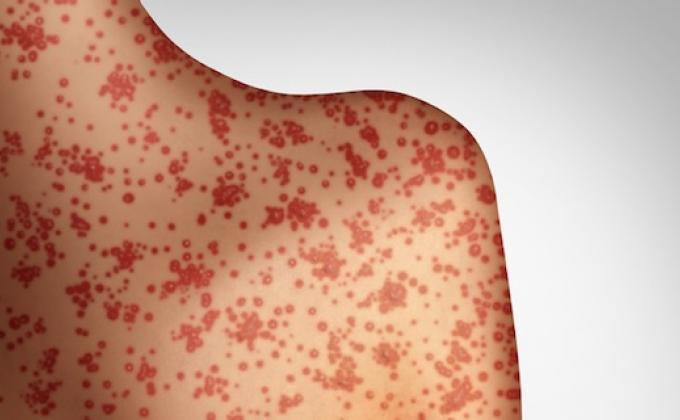 La rougeole, l'une des maladies les plus contagieuses dans le monde revient en force